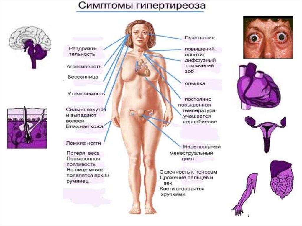 Парапроктит  причины симптомы диагностика и лечение