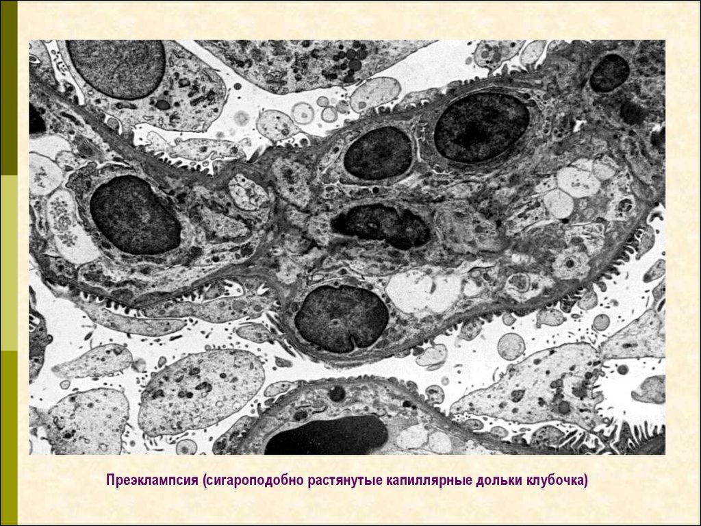 Гипертоническая болезнь лечение видео