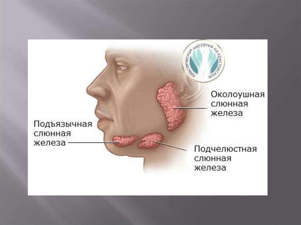 Если не лечить слюнные железы в домашних