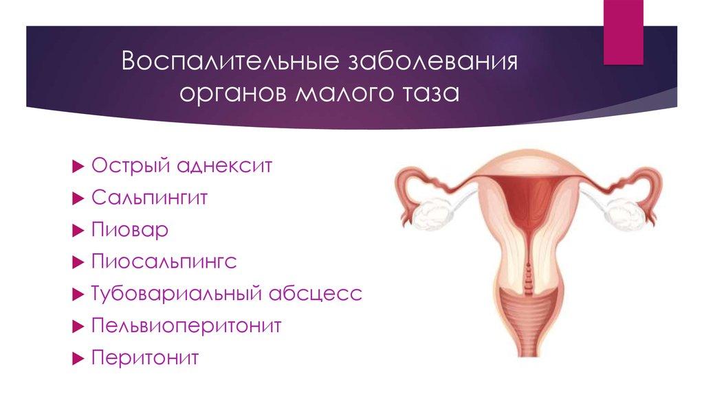 Заболевания женские