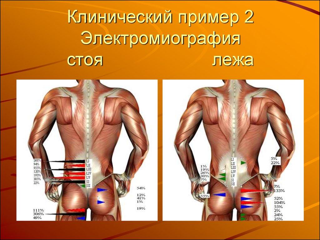 Можно ли делать массаж при искривление позвоночника