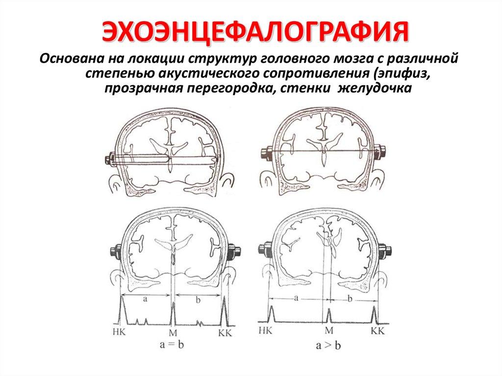 Эхоэнцефалография