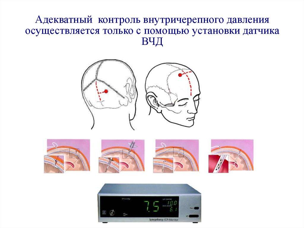 Внутричерепное давление лечить в домашних условиях 158