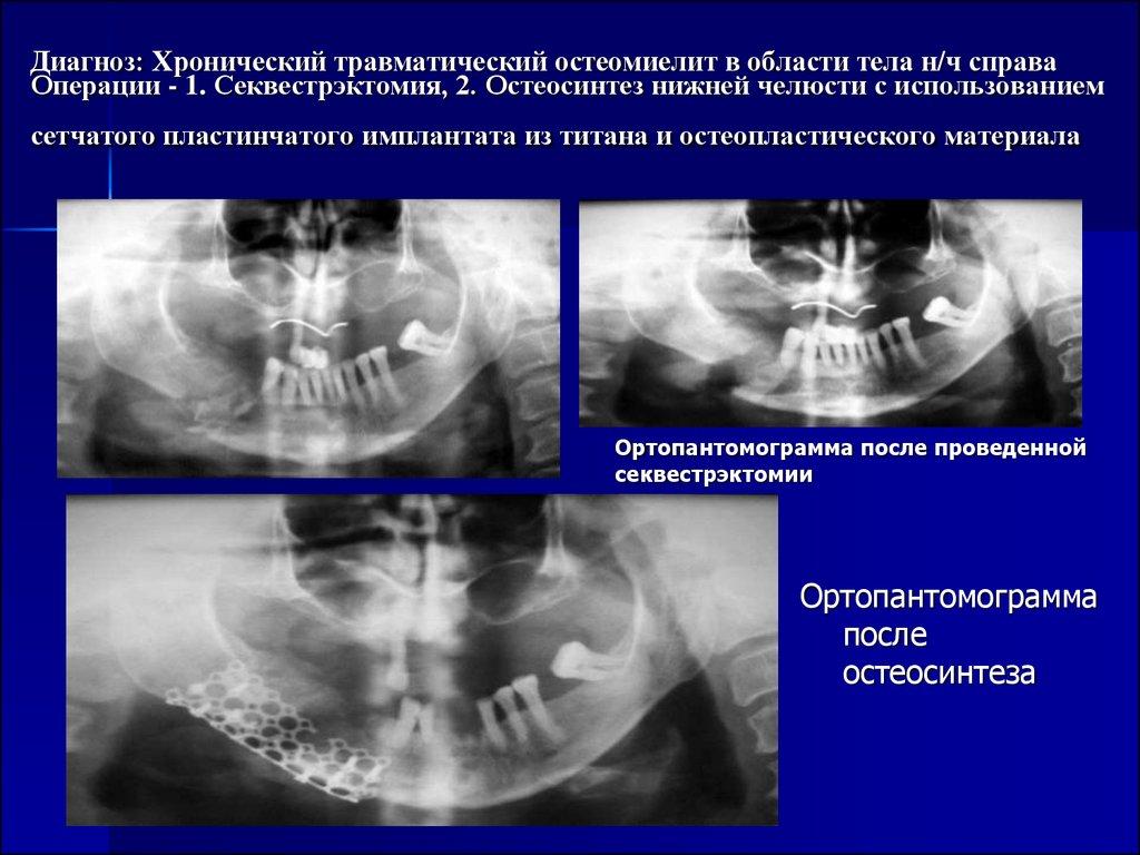 Секвестрэктомия
