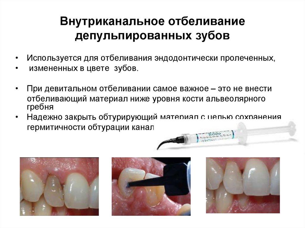 Отзывы о внутриканальном отбеливании зуба