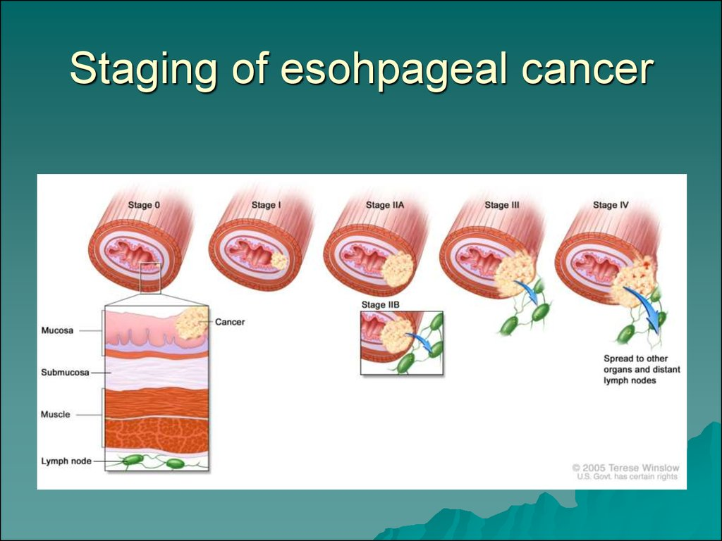 esophageal cancer  stomach cancer