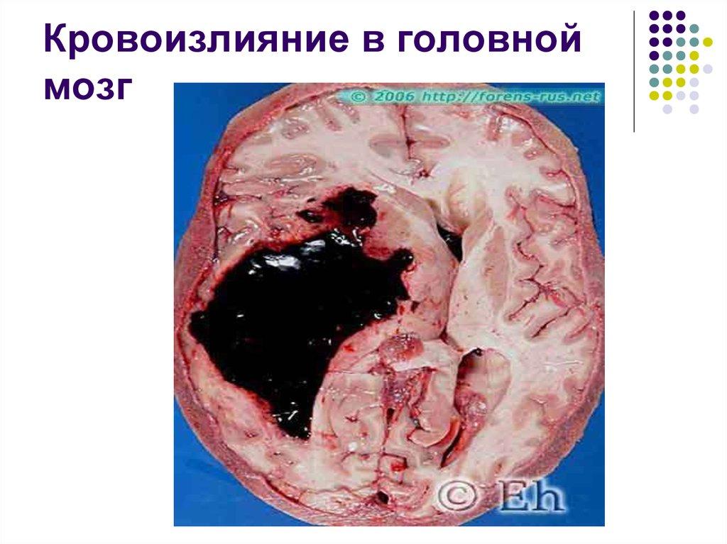 Кровоизлияние в мозг у беременных 75