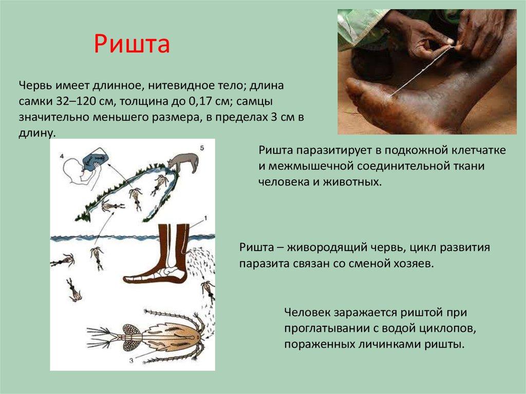 ришта паразит человека фото