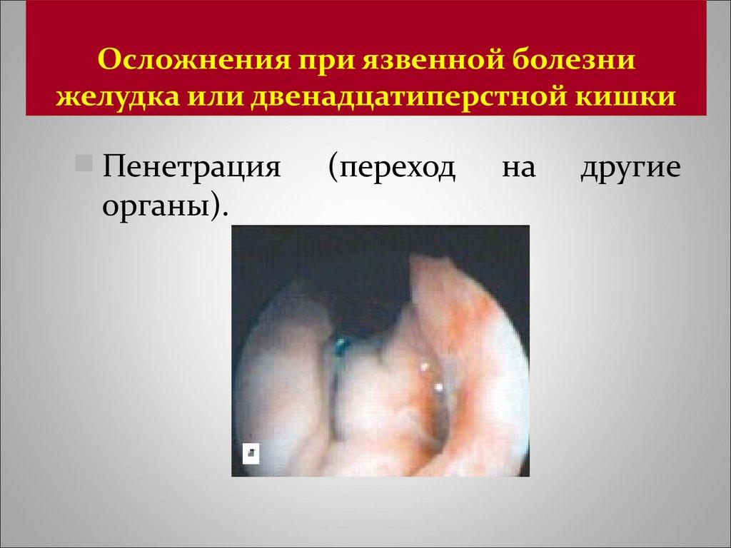 Язвенная болезнь желудка и двенадцатиперстной кишки - презентация онлайн