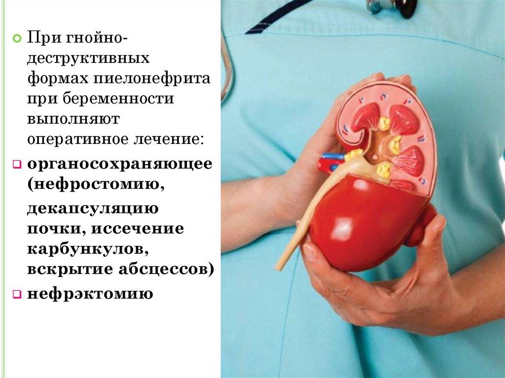 Люмбалгия лечение у беременных