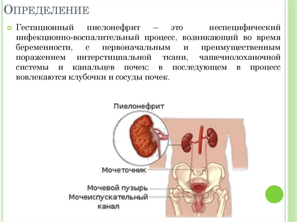 Чем лечить хронический пиелонефрит у беременных 8