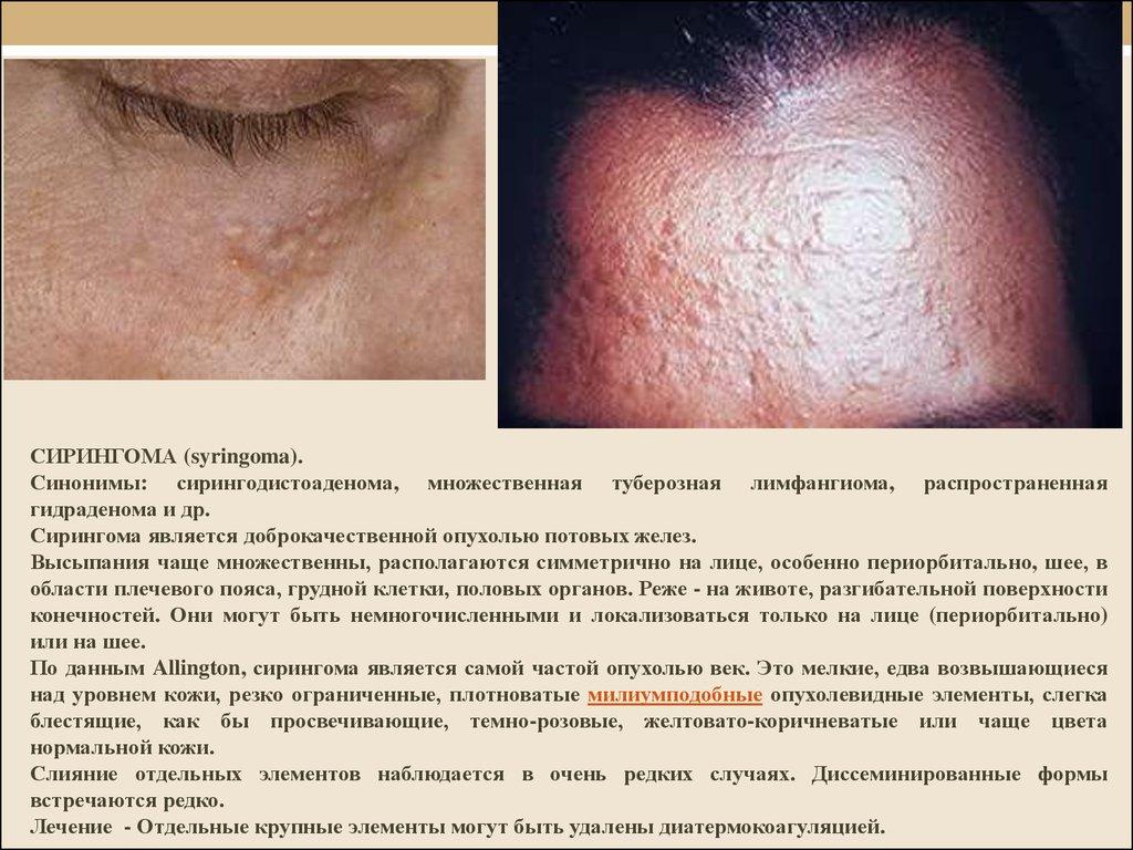 рак кожи фото симптомы лечение № 66941 без смс