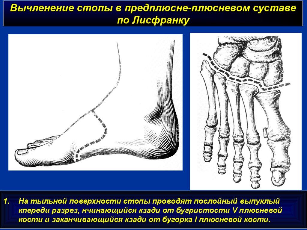 артроз первого плюснефалангового сустава проявляется