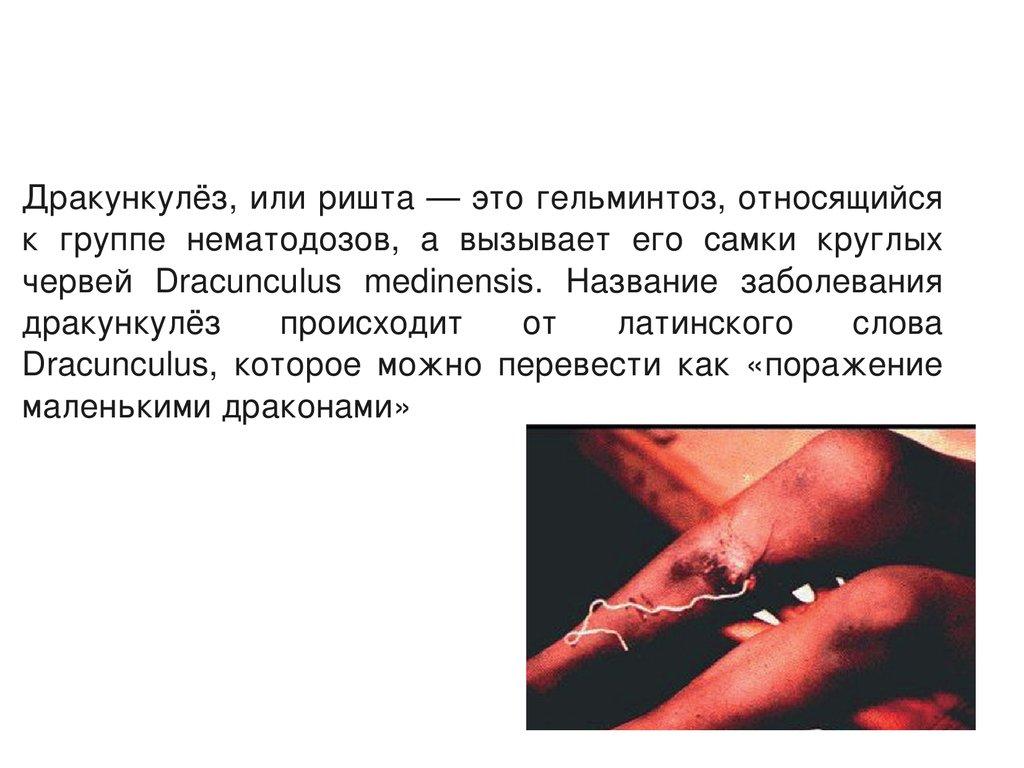 паразиты в ногах человека