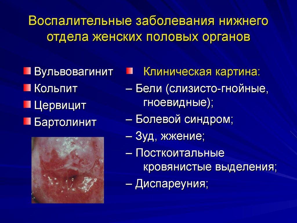 lechenie-oslozhnennogo-kandidoza-vlagalisha