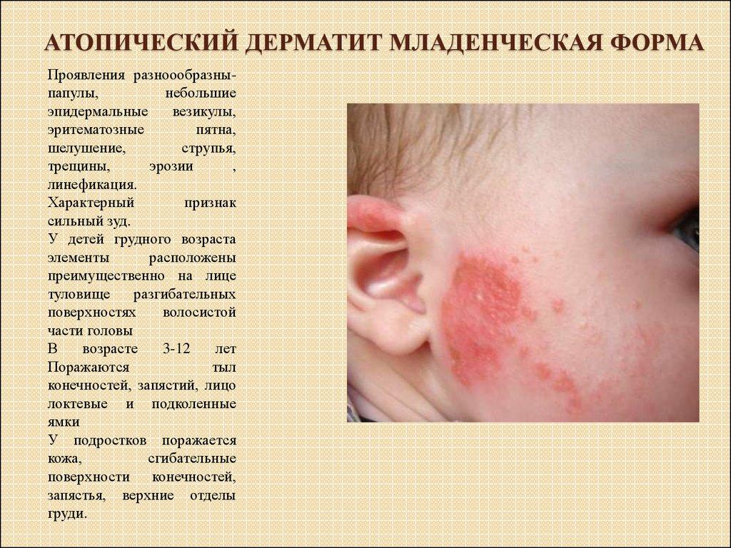 Лечение экземы ребенку