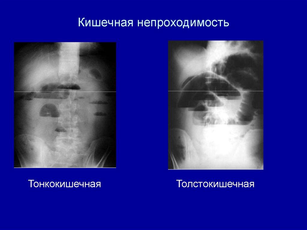 Гериатрическая больница петропавловск камчатский край