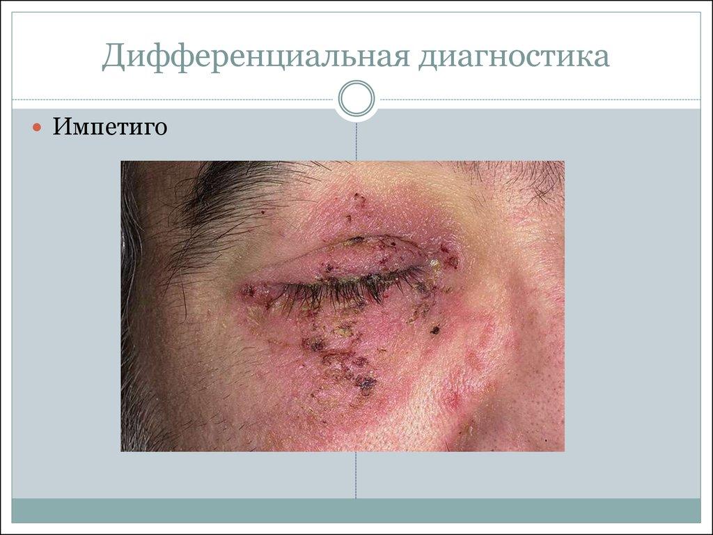 высыпания на коже при вич фото: http://appslovar.ru/page/visipaniya_na_koje_pri_vich_foto/