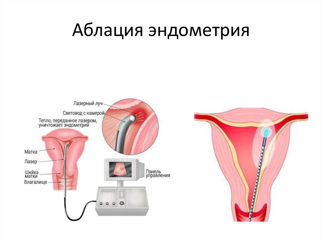 Лазерное удаление полипов матки казань Интересное в мире сегодня Mebel-zavod.ru