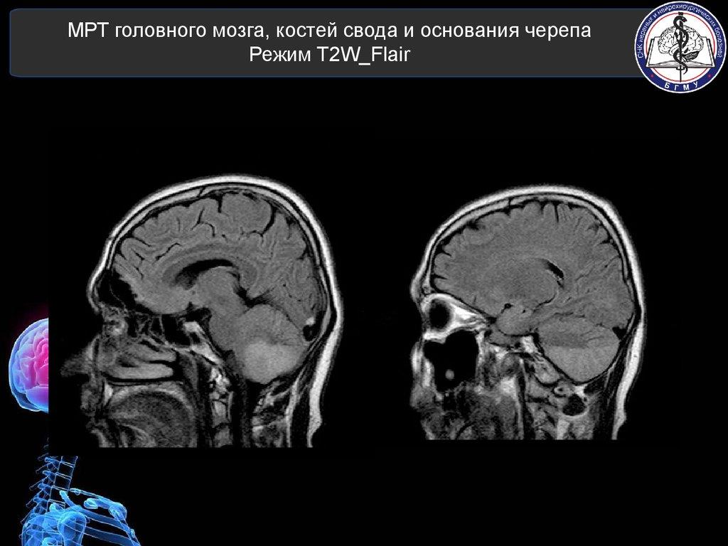 Лечение позвоночника в санатории подводная вытяжка белоруссия