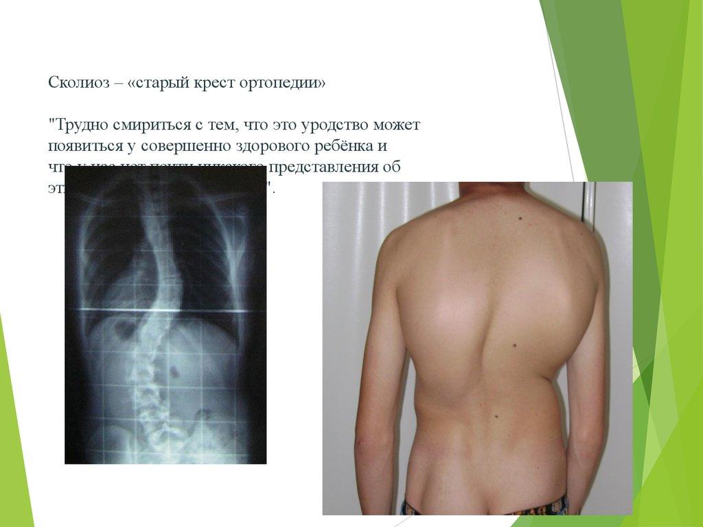 Комплекс упражнений s-образного сколиоза