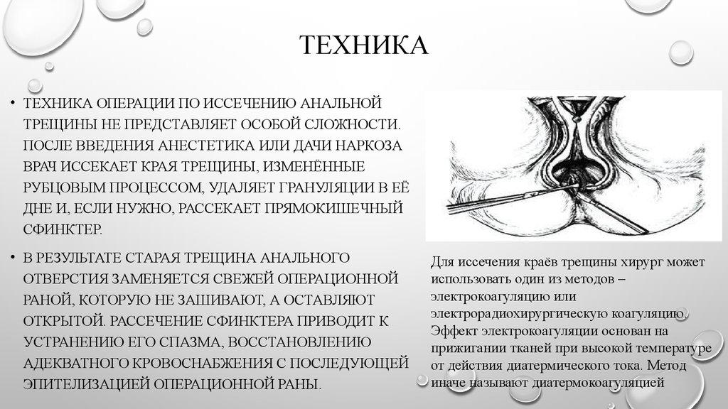 lechenie-analnih-irkutsk
