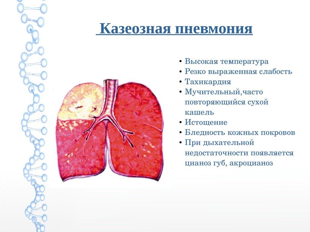 соединение проблемном пневмония без температуры но с сухим кашлем товара: Категория: