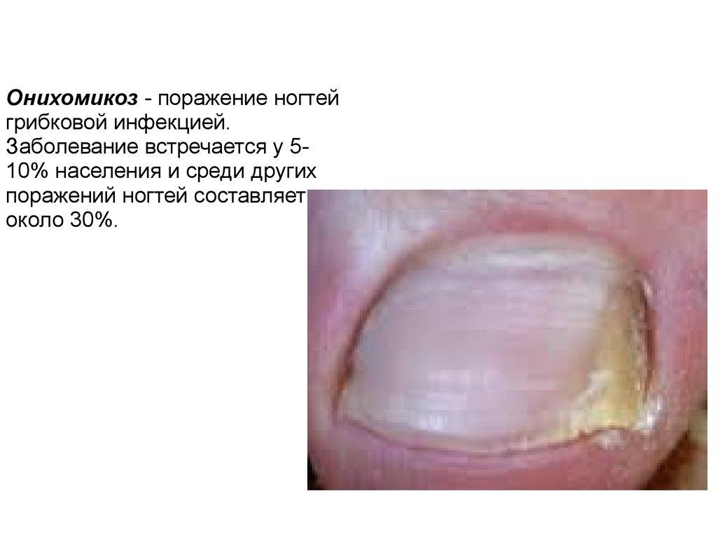 Как лечить грибок ногтей онихомикоз лечение