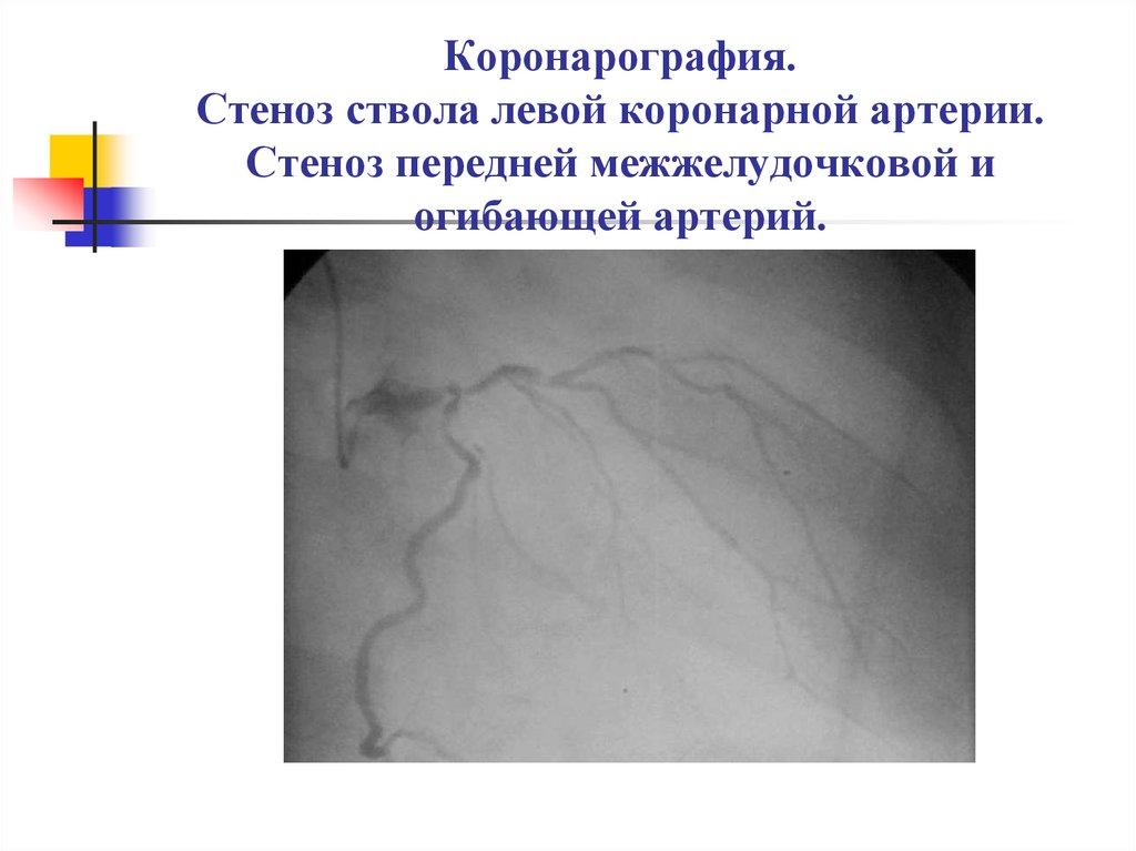 coronarografia rischi età