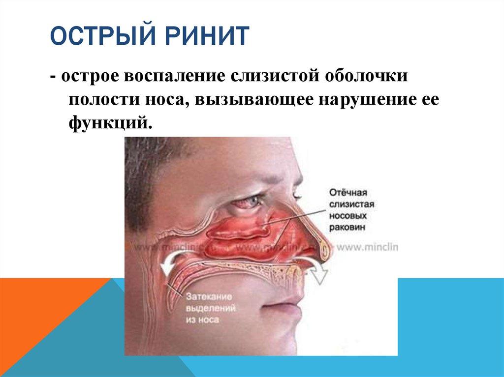 Снять отек слизистой носа в домашних условиях 141
