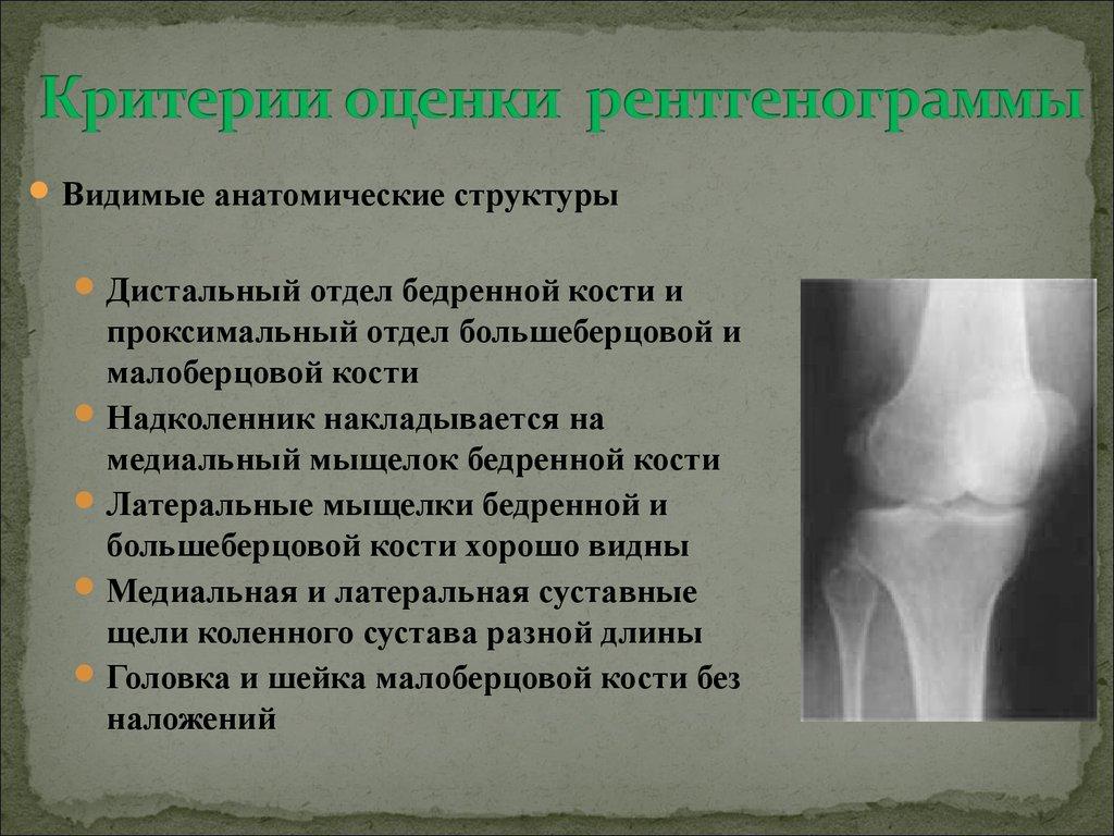 гипермобильность коленных суставов лечение