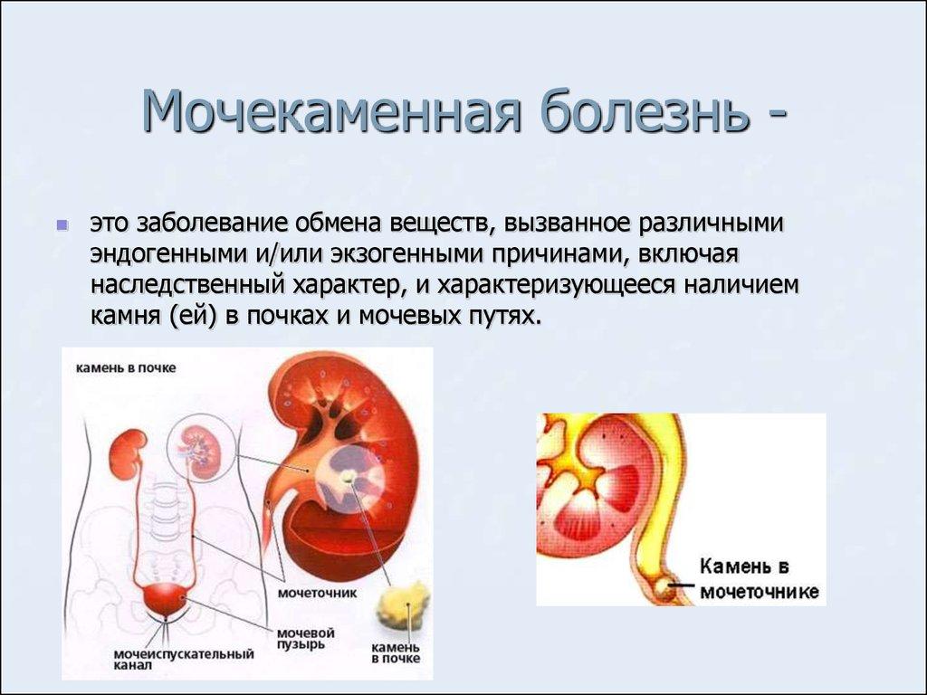 Мочекаменная болезнь лечить в домашних условиях