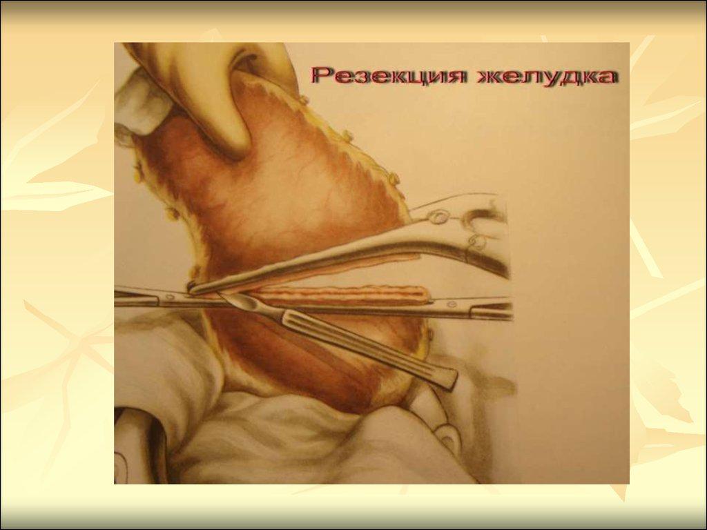 Эндоскопические методы диагностики и лечения острого панкреатита
