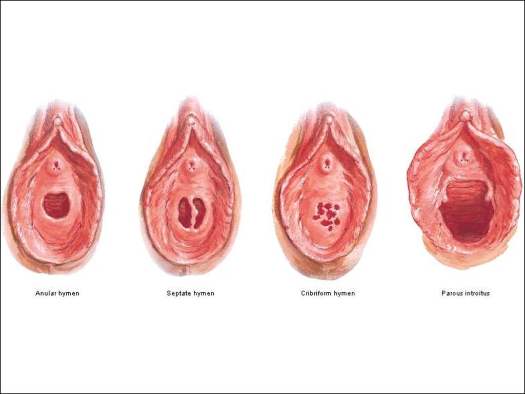 how to cut septate hymen