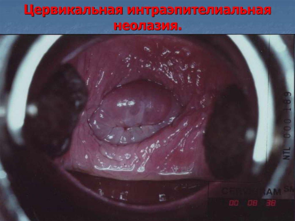 Дисплазия шейки матки у беременных 51