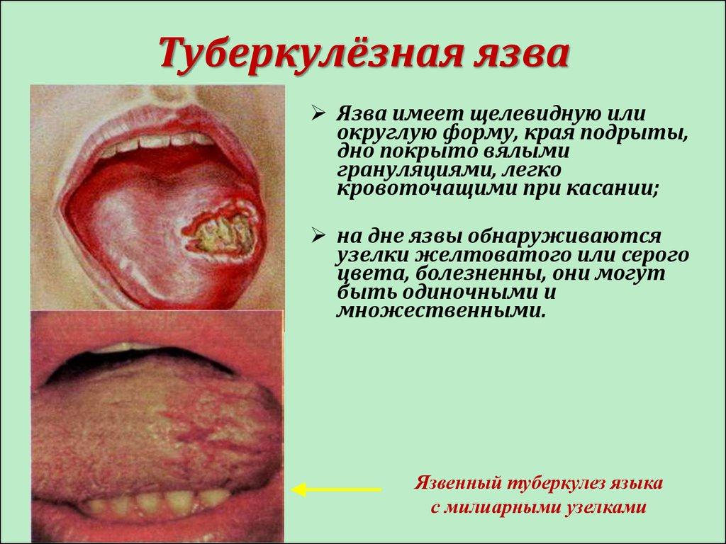 Как лечить сифилис в домашнем условии