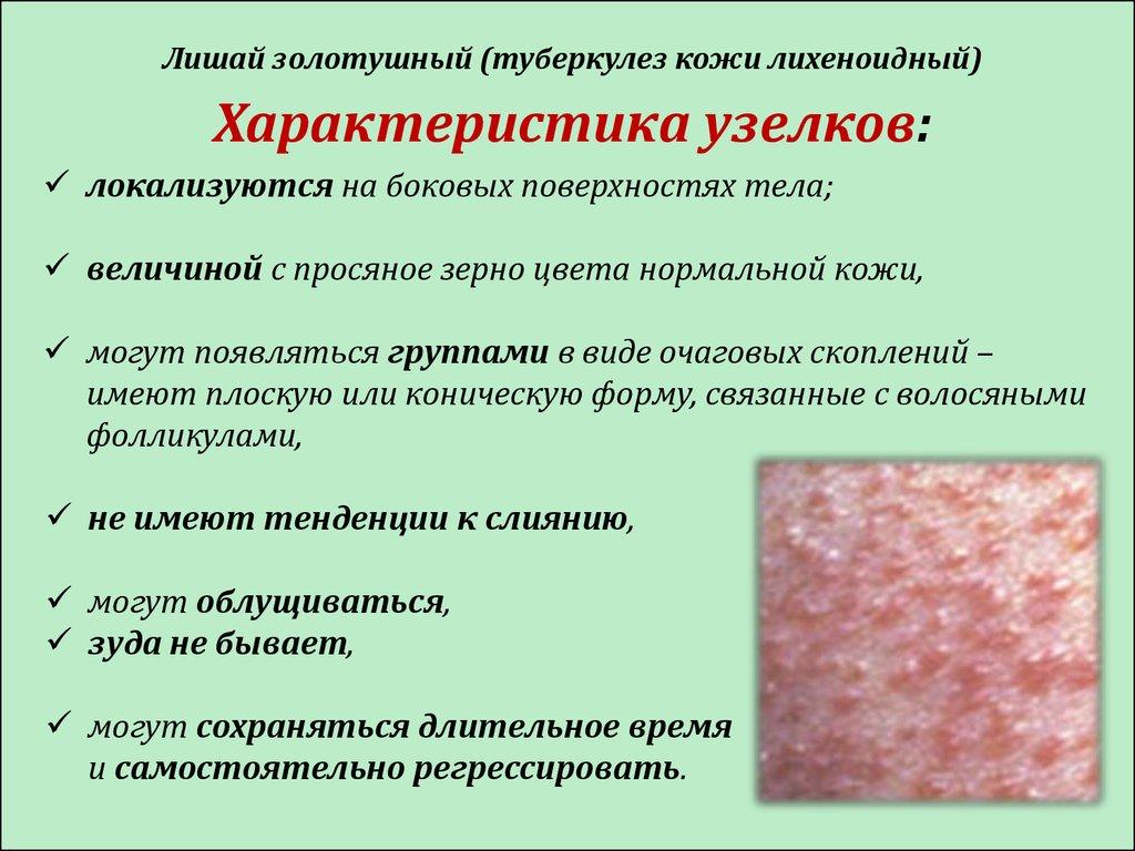 Туберкулез кожи у ребенка фото