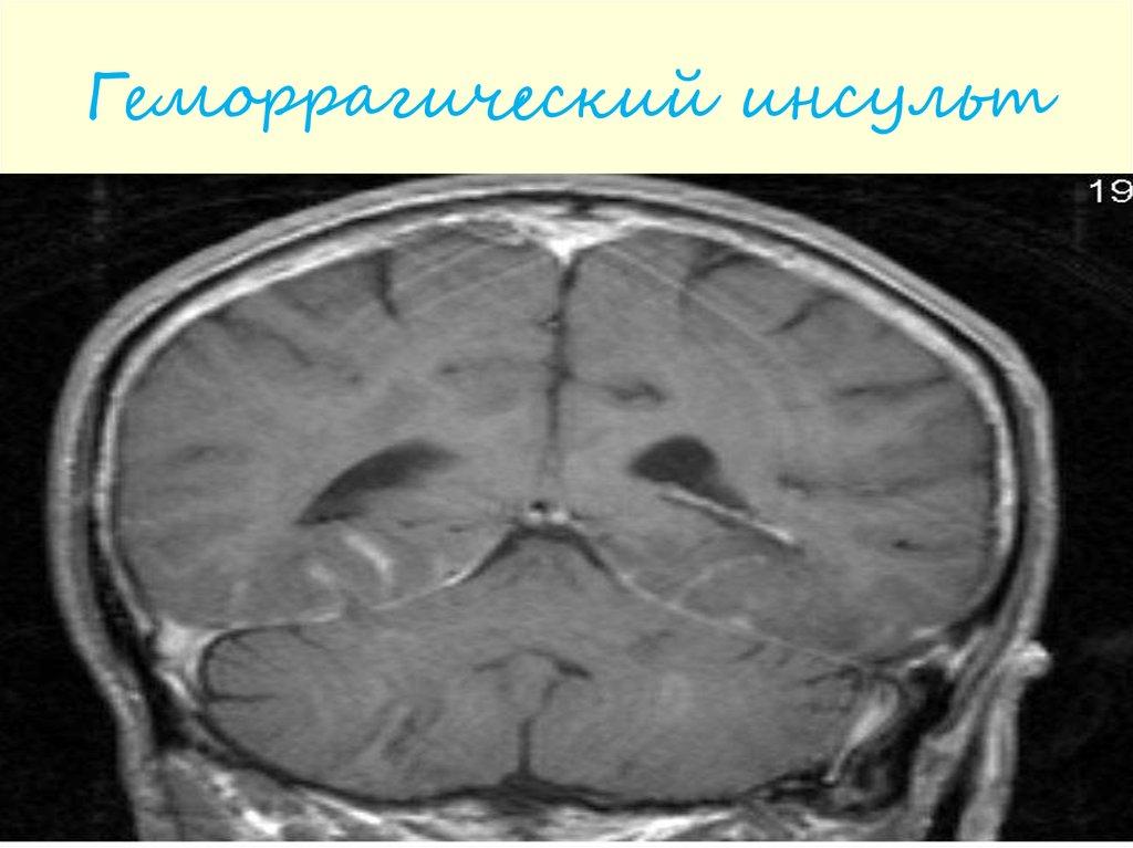 Головная боль и нарушения мозгового кровообращения