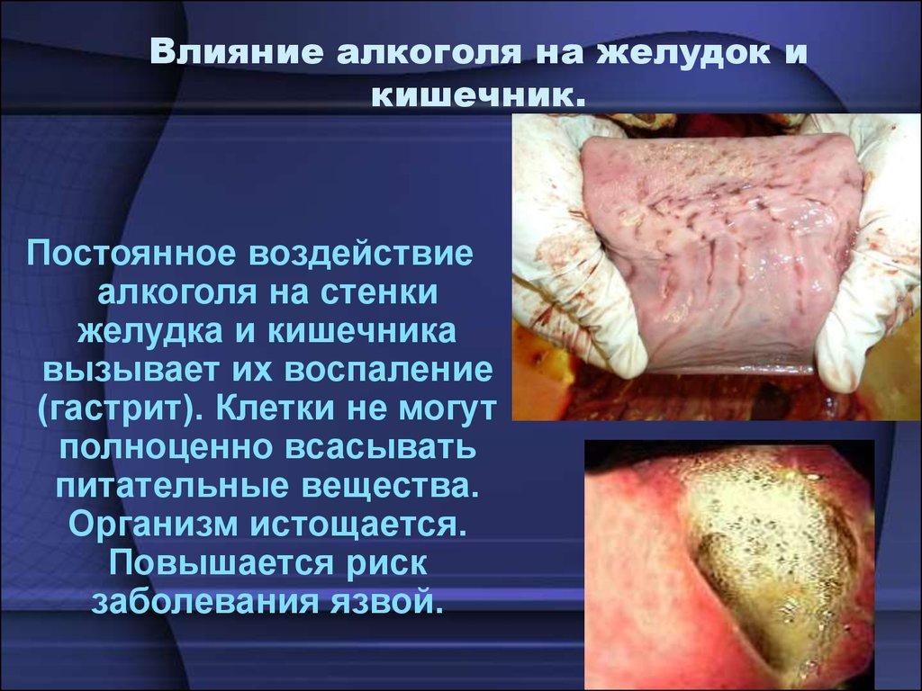 Алкоголизм его влияние на желудок красноярск кодировка алкоголизм имплант