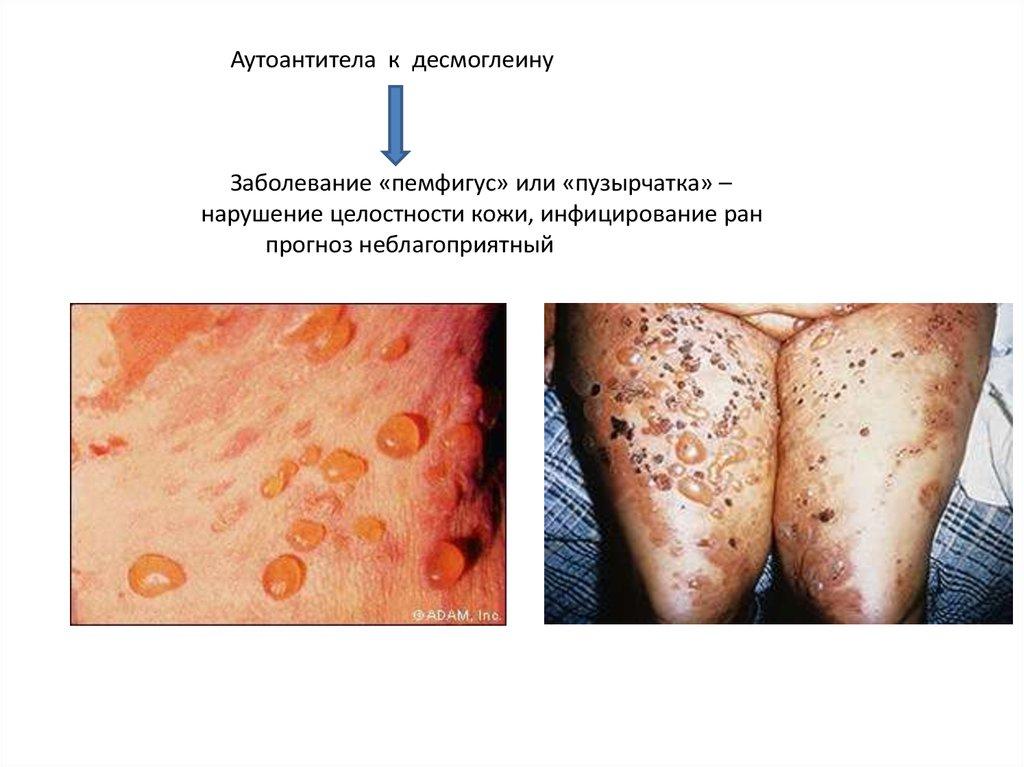 сборы от паразитов в организме человека
