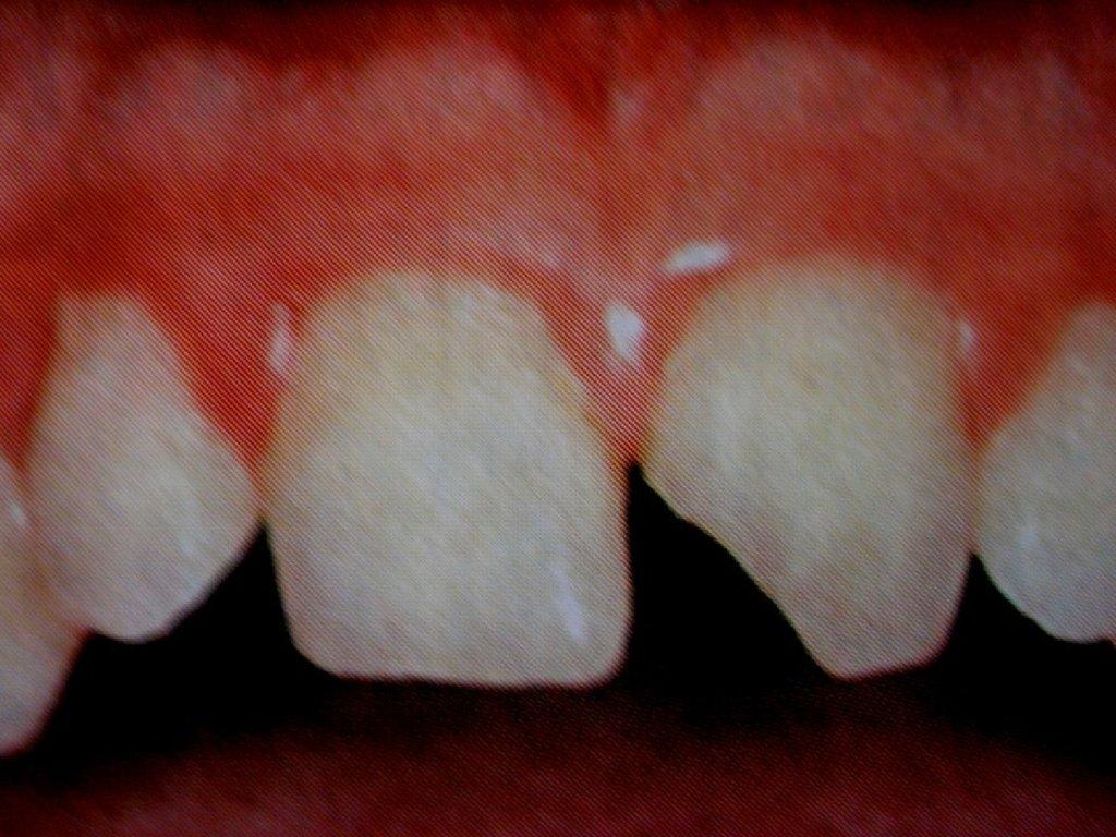 Некариозные происхождения зубов