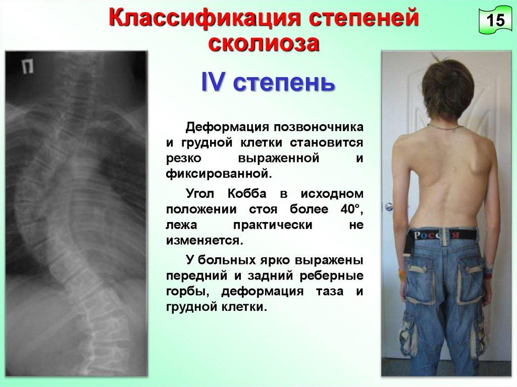 Сколиоз грудного отдела и шейного отдела упражнения