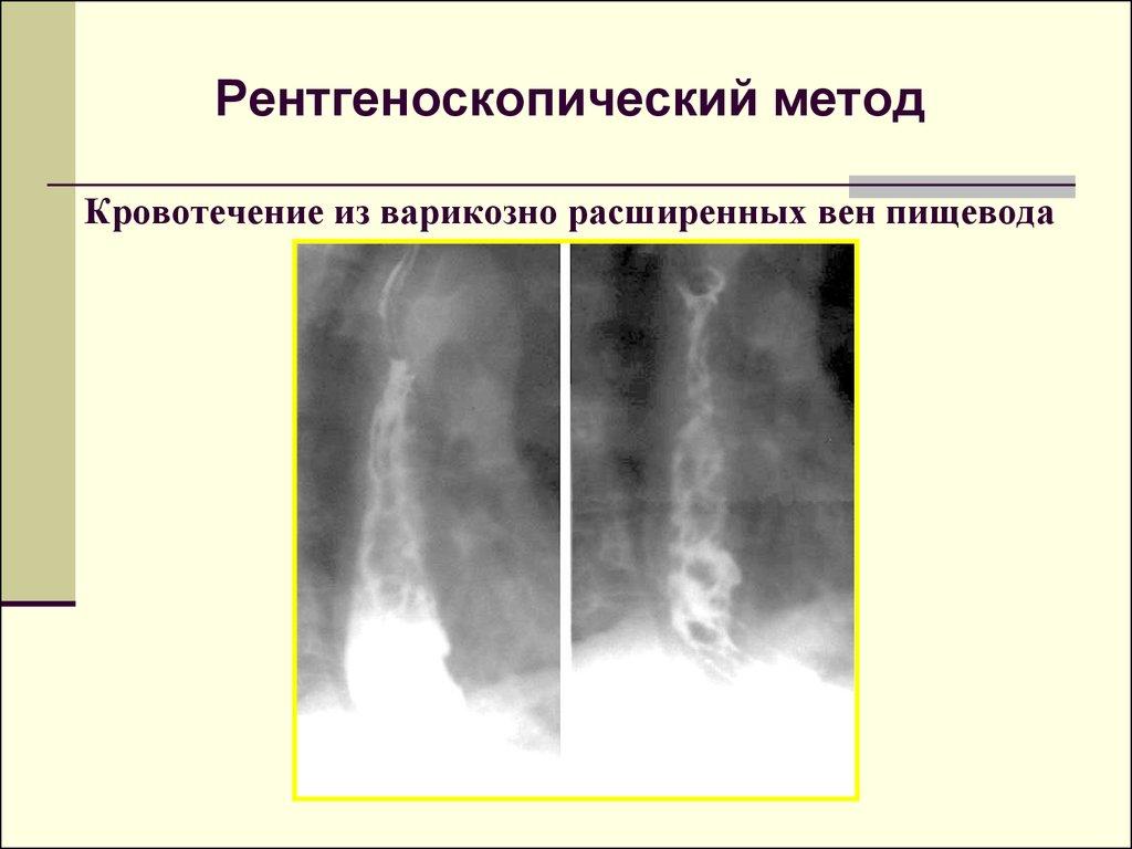Чем опасен варикоз во время беременности, и можно ли