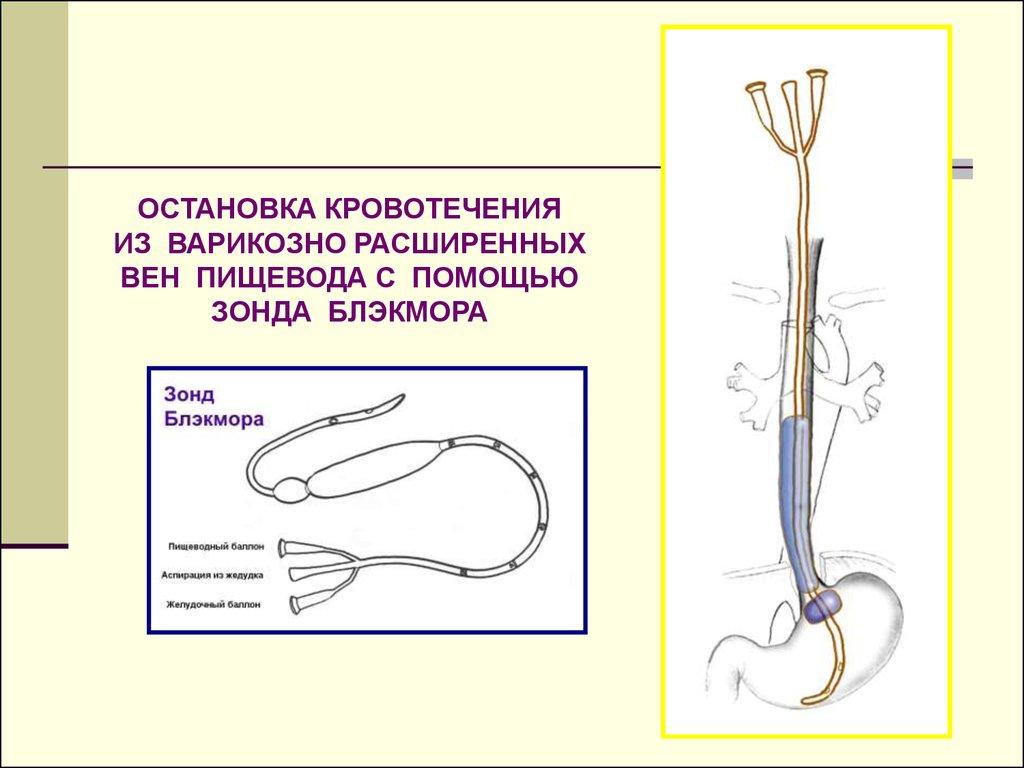 Варикоз у мужчин лечение без операции