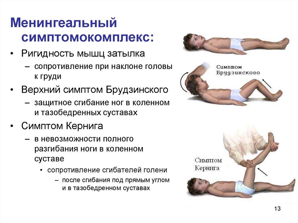 Симптом Ромберга