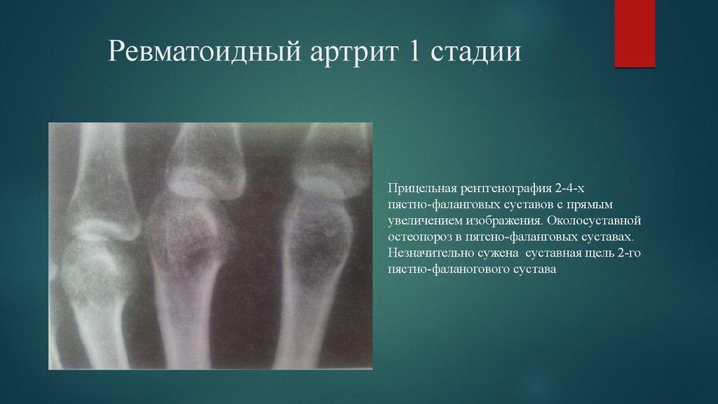 rheumatoid arthiritis Basic information about rheumatoid arthritis, including common symptoms and treatment.
