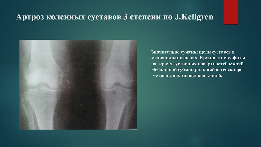 артроз коленных суставов лечение видео