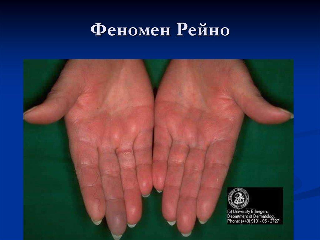 Васкулиты кожи и лечение