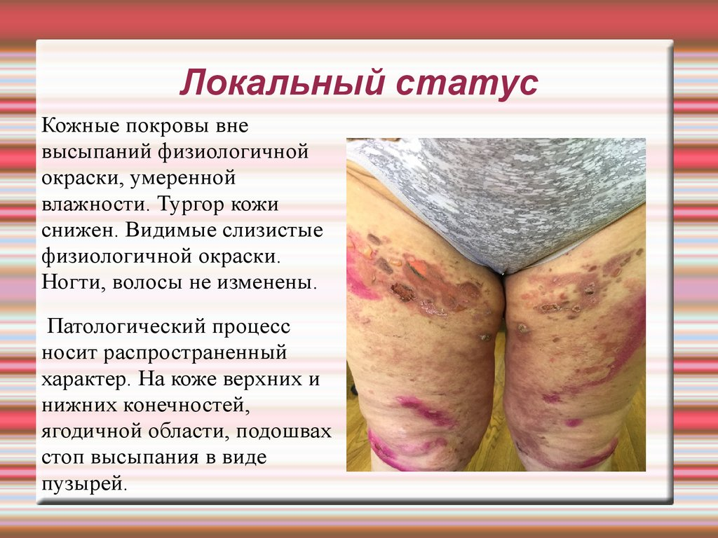 Лечение молочницы на коже