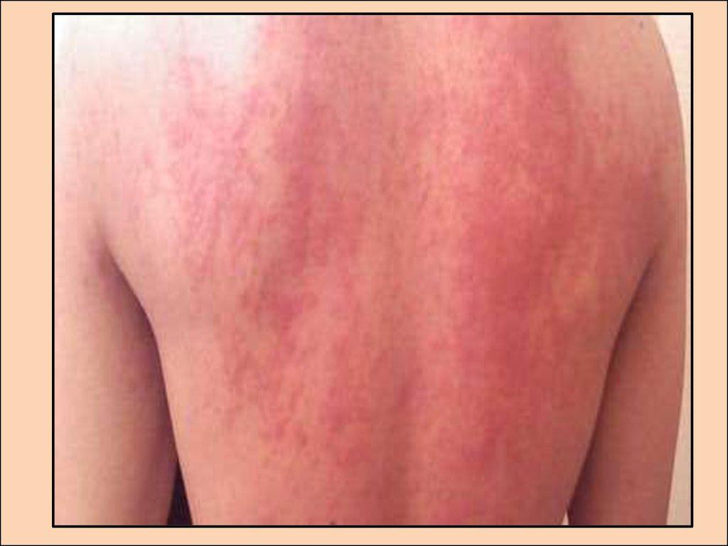 библиотечная пыль аллергия лечение